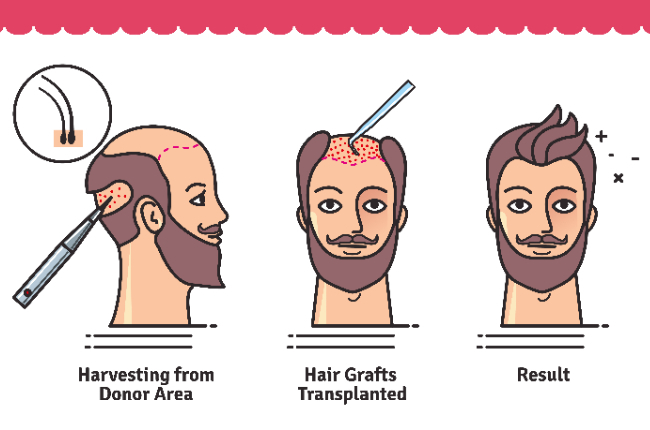 Say No to Baldness with Hair Transplant Surgery