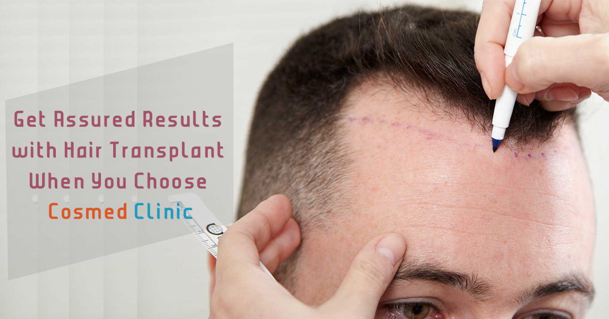 Hair Transplant at Cosmed Clinic