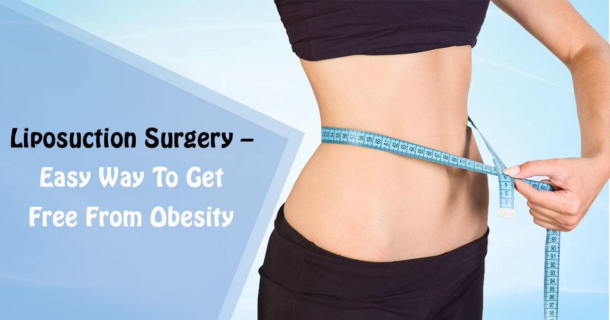 Liposuction Surgery - Easy Way To Get Free From Obesity | Cosmed Clinic