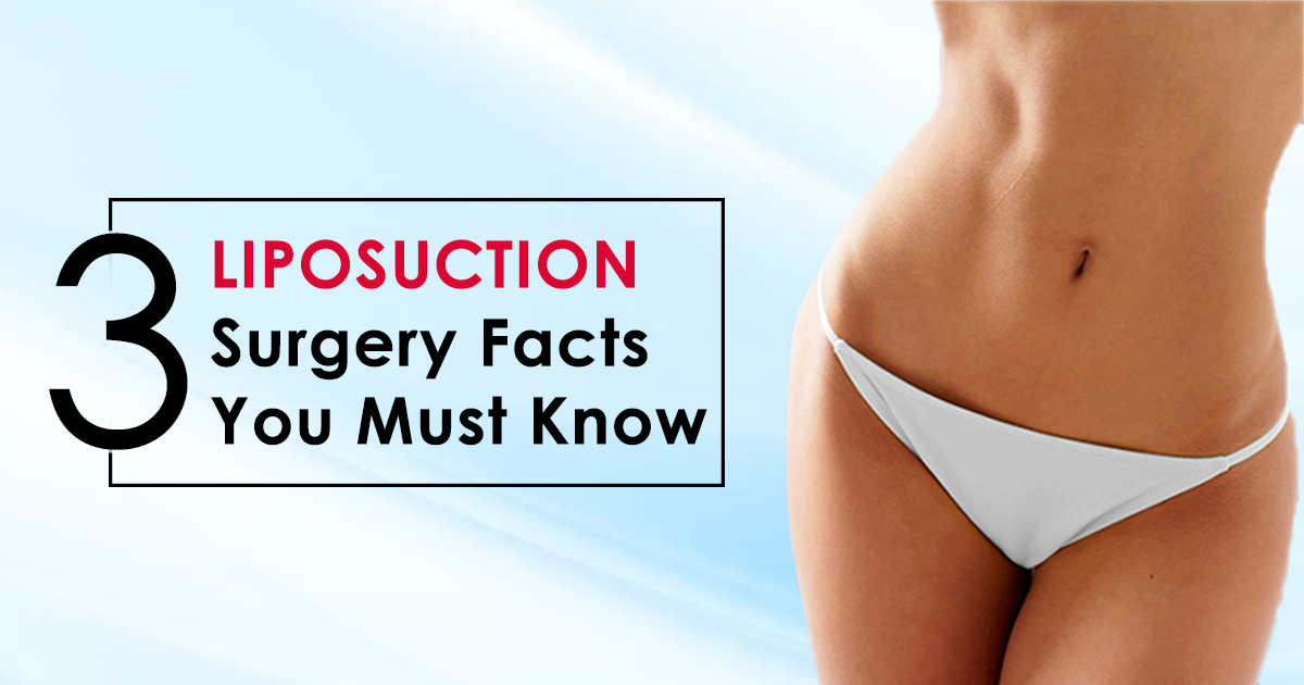 3 Liposuction Surgery Facts You Must Know