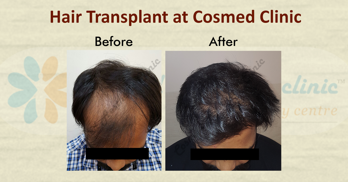 Hair Transplant Before and After Result
