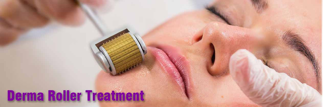 Derma Roller Treatment