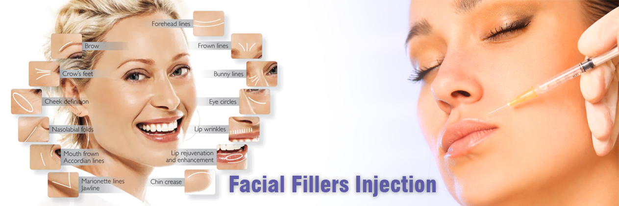 Facial Fillers Injection
