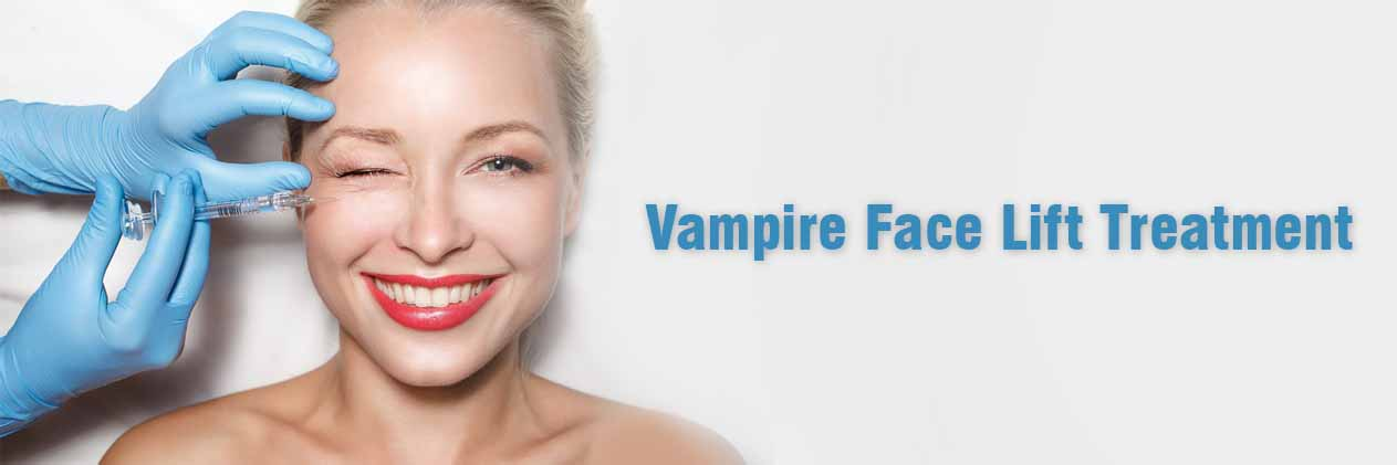 Vampire Face Lift Treatment
